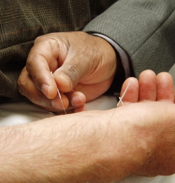 Photo: acupuncture (Wikimedia Commons)